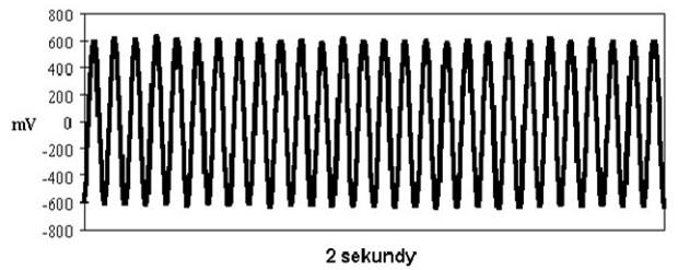 Dudnienia różnicowe jako fala sinusoidalna